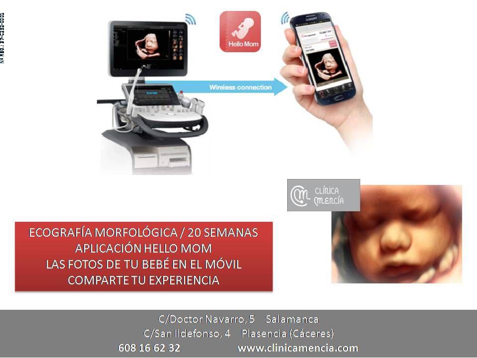 ECOGRAFÍA MORFOLÓGICA O DE LAS 20 SEMANAS CON TECNOLOGÍA 5D